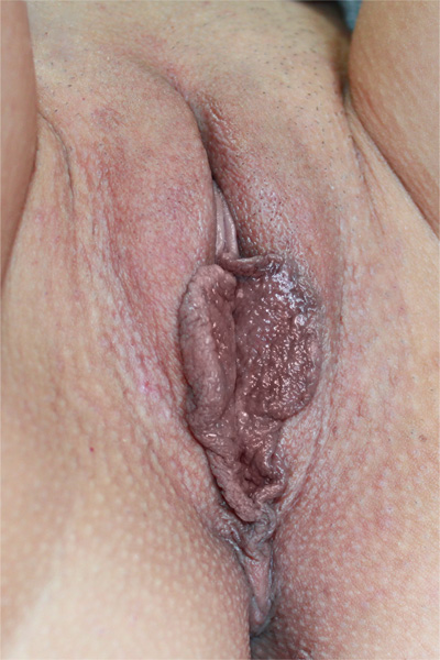 Интимная пластика антуриум барнаул