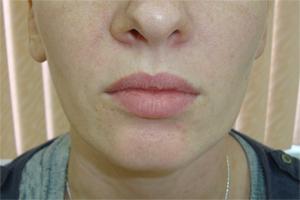 Перманентный макияж губ, до