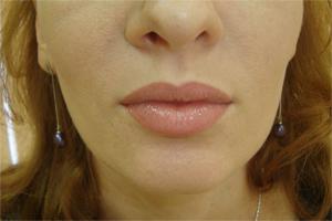 Перманентный макияж губ, через две недели