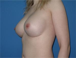 Крем для груди салон спа отзывы