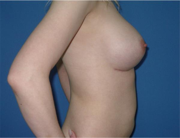 Пластика на грудь в перми
