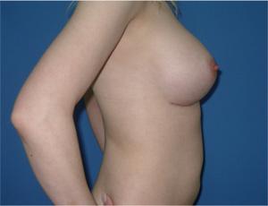 Какой купальник выбрать девушке с маленькой грудью