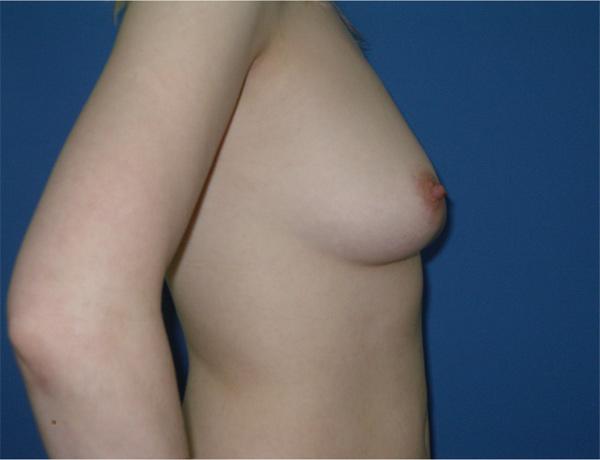 Подтяжка и увеличение груди с круглыми имплантами