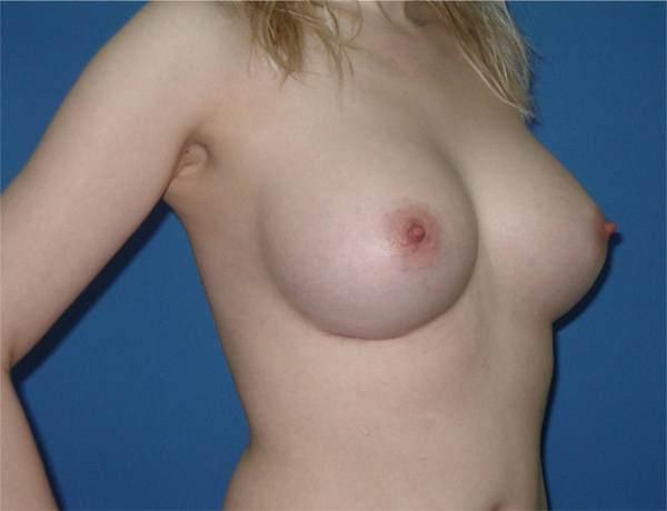 Увеличение груди без импланта