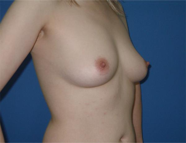Увеличить груди на 2 размера за 3 месяца