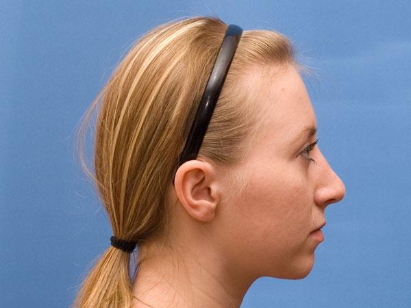Толстый кончик носа после ринопластики
